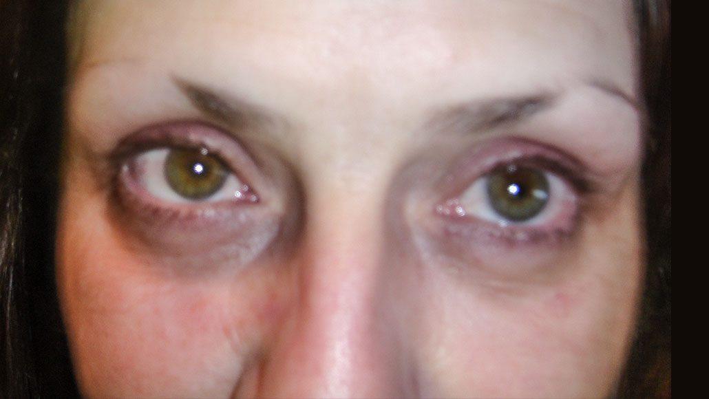 Maquillage permanent sourcils (avant)